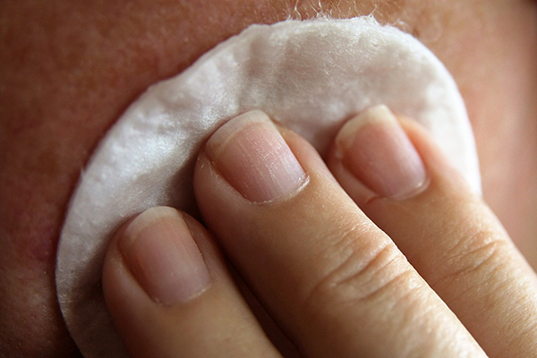 Treating acne using horseradish and wine or vinegar preparation using a cotton wool pad